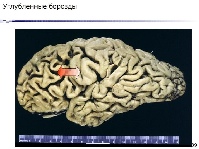 Мозг больного человека