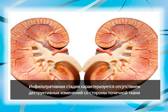 Инфильтративная стадия