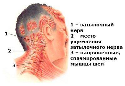 Невралгия шейного отдела 6 симптомов и лечение