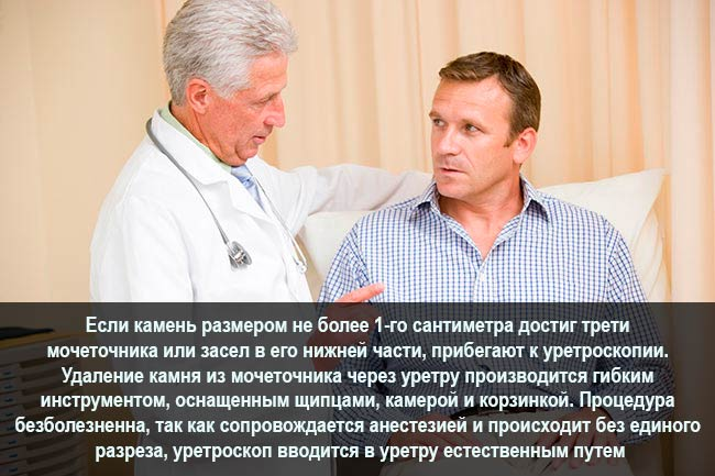Что такое уретроскопия