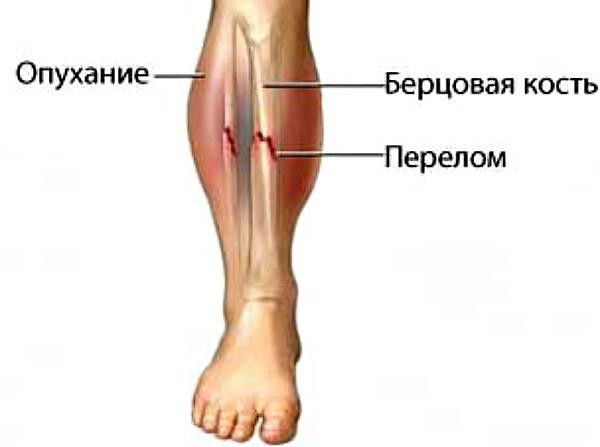 6 видов перелома голени первая помощь и сколько ходить в гипсе?