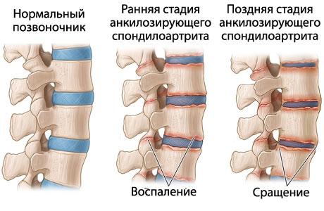 Какую инвалидность дают при болезни Бехтерева (анкилозирующий спондилоартрит).