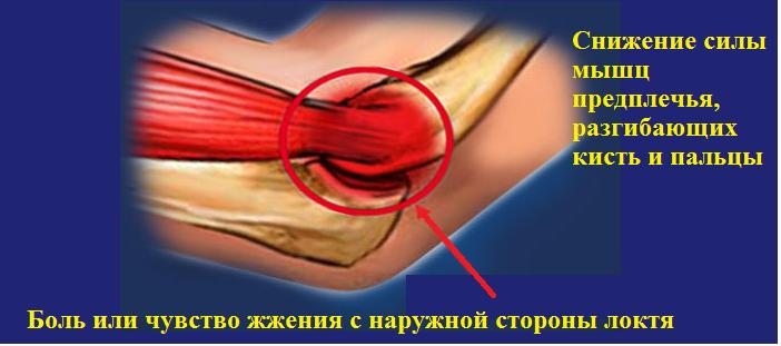 Боль в локтевом суставе при разгибании, нагрузке и надавливании