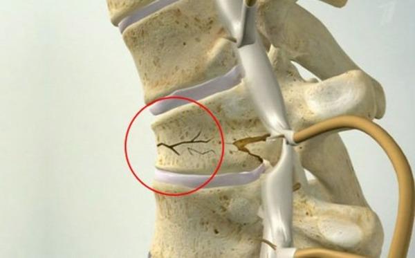 4 этапа лфк при переломе позвоночника