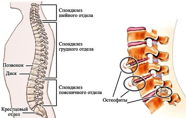 11 признаков спондилеза (спондилоартроза) грудного отдела способы лечения