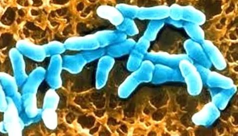 Гарднерелла бактерия