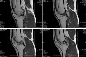 МРТ коленного сустава