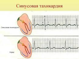 Синусовая тахикардия: код по МКБ-10, признаки и лечение