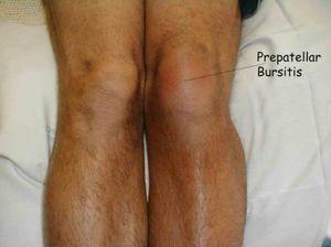Что делать, чтобы не опухало колено