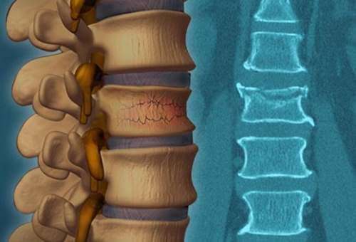 9 симптомов компрессионного перелома позвоночника у детей. Последствия