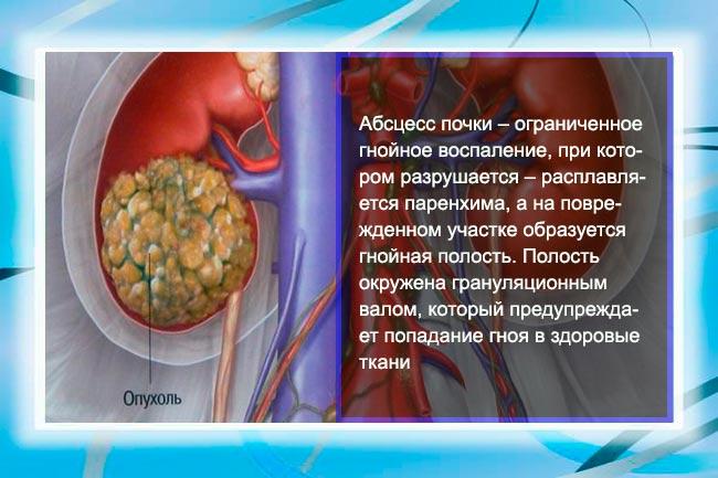 Абсцедирование почечной ткани