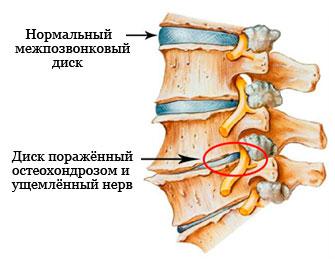 Защемление нерва в пояснице (заклинило спину) если боль отдаёт в ногу