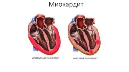 Причины возникновения и варианты лечения низкого пульса при нормальном давлении