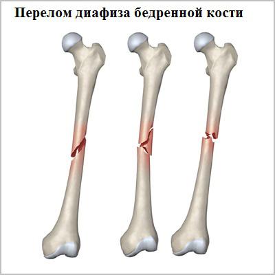 8 симптомов диафизарного перелома бедренной кости. Какие особенности?