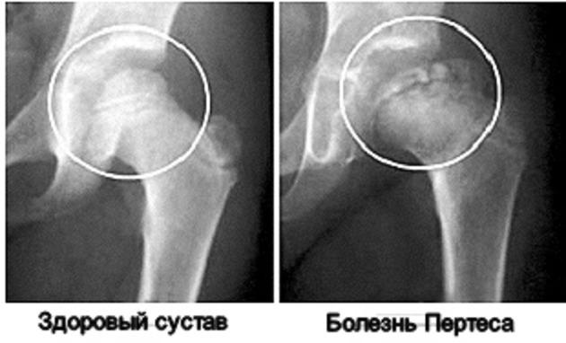 6 причин болезни Пертеса тазобедренного сустава у детей и взрослых