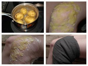 Народное средство картофельный компресс