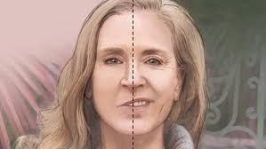 перекос лица при поражении лицевого нерва