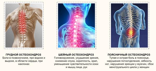 Аппарат для лечения остеохондроза 7 разновидностей и какой выбрать?