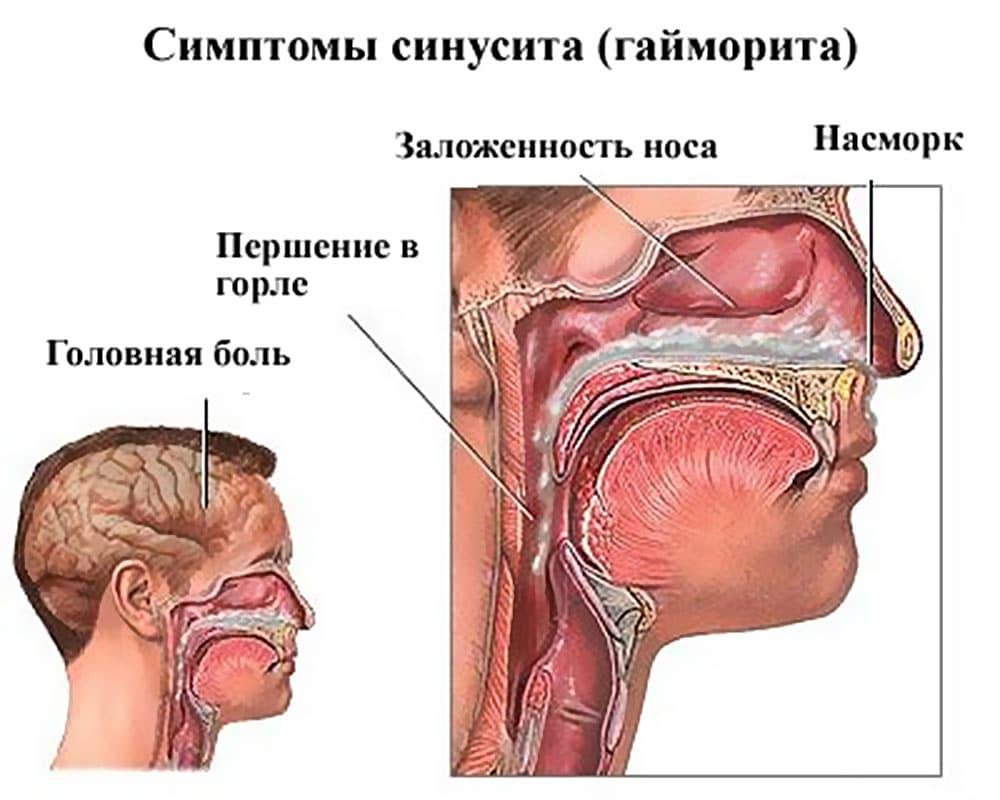 Формы острого синусита