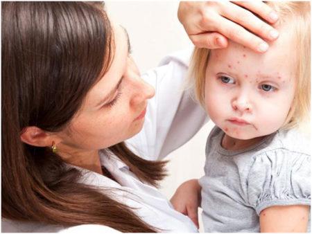 Причины понижения эозинофилов у ребенка, женщины или мужчины, симптоматика, подходы к терапии