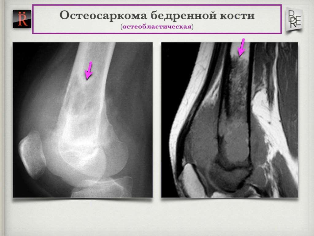 6 симптомов остеогенной саркомы бедренной кости. Ранние признаки и прогноз