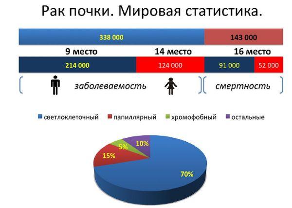 Статистика заболевания опухолью