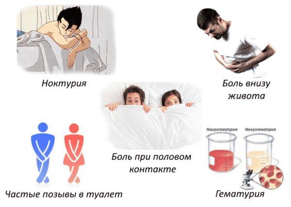 Симптомы развития цистита