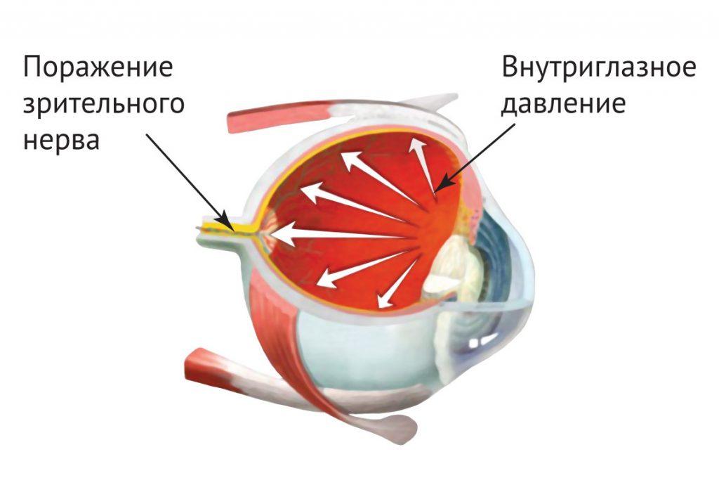 Схема внутриглазного давления