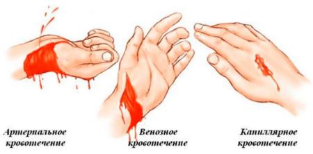 Что надо знать о постгеморрагической форме анемии и ее терапии при различных кровотечениях?