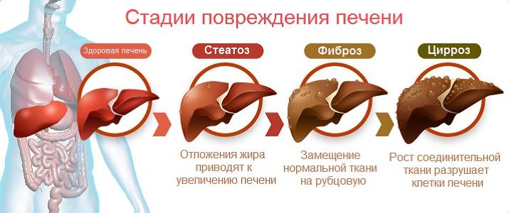 Стадии гепатоза