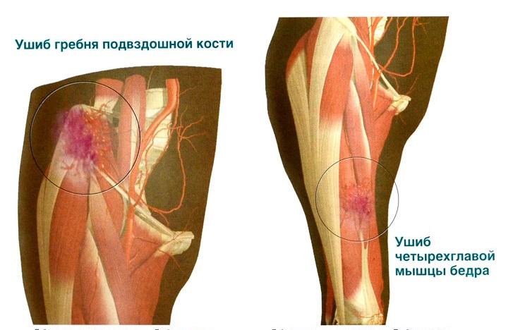 Ушиб бедра, таза и мягких тканей при падении и др. 6 симптомов и лечение