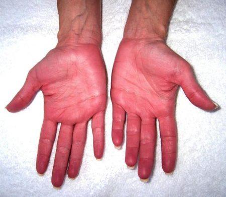 Что надо знать о лекарствах при высоких показаниях гемоглобина в крови?