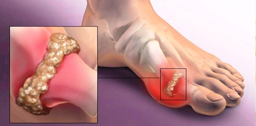 Чем лечить подагру на большом пальце ноги и на стопе?