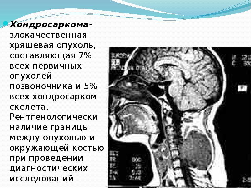 Саркома позвоночника разновидности и 11 симптомов. Насколько опасна?