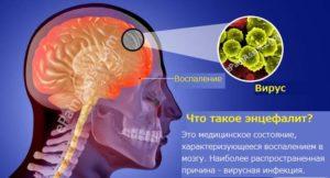 Описание энцефалита