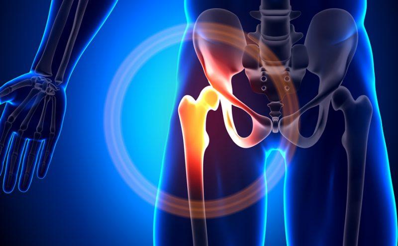 Болит тазобедренный сустав, что делать и как лечить?