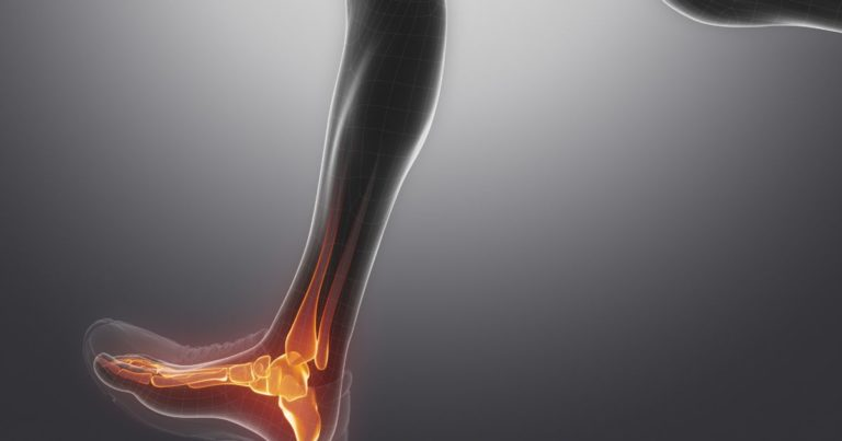 Сколько заживает трещина в голеностопе, как её определить и как оказать ПМП?