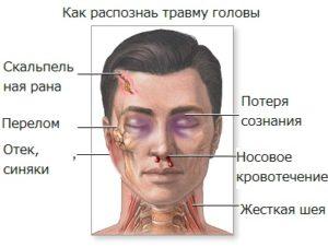 Как распознать травму