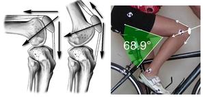 Признаки лигаментоза коленного сустава