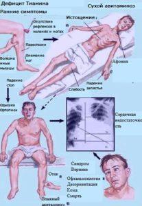 Энцефалопия Вернике - симптомы