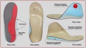 Обувь при плоско-вальгусном дефекте