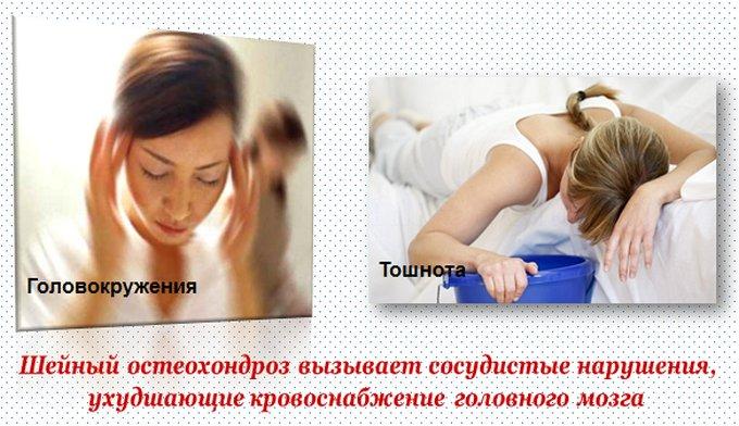 Тошнота при остеохондрозе шейного отдела, почему и отчего тошнит?