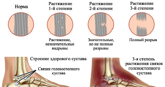 Сколько заживает разрыв связок голеностопа? 13 симптомов и лечение
