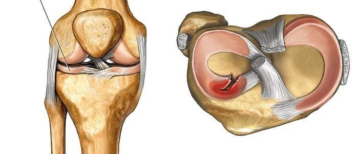 5 осложнений после операции на мениске. Чем ещё может закончится подобная травма?