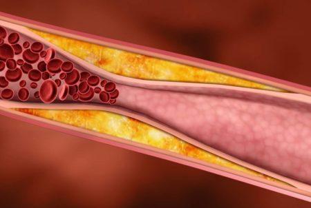 Способен ли гранат повышать или понижать артериальное давление, противопоказания, показания, целебные свойства и побочные эффекты