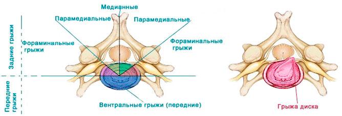 Парамедианная грыжа диска l4, l5, s1, c5, c6 задняя, левосторонняя и правосторонняя