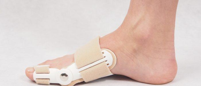 4 показания для использования фиксатора косточки на ноге