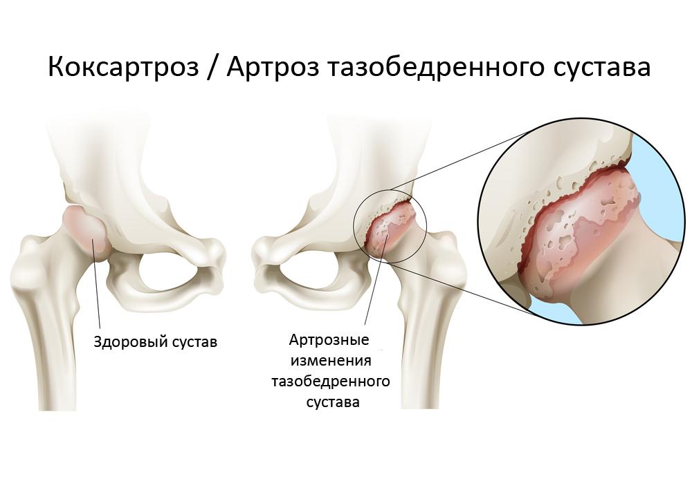 Лечение шейного остеохондроза корнем подсолнуха