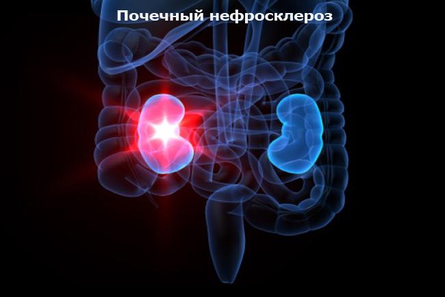 Почечный нефросклероз