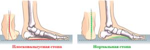 Схема вальгусной стопы